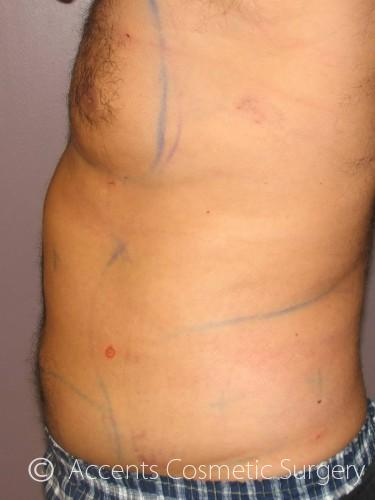CoolSculpting Gynecomastia