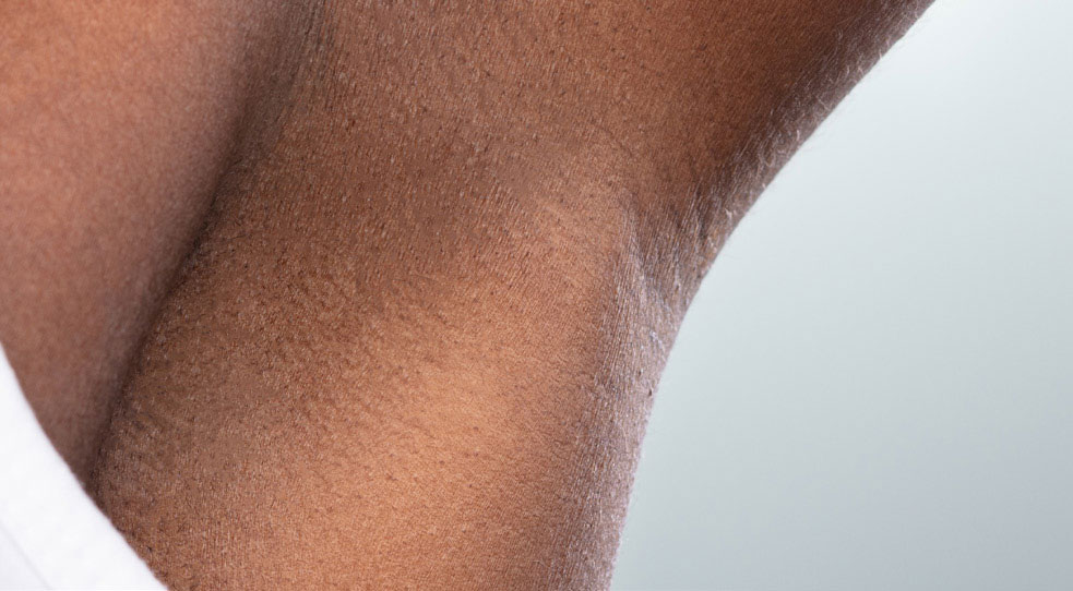 Laser Hair Removal Michigan