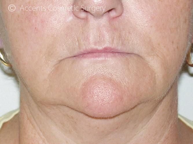 Thermage Face And Neck Before and After 01