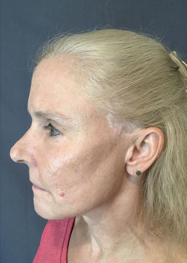 Threadlift Facelift Before and After 01